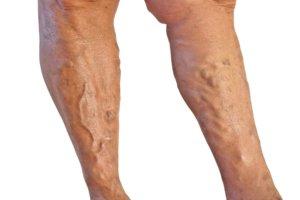 Почему могут болеть вены на ногах, и как справиться с болью