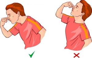 Нельзя закидывать голову назад, попавшая в горло кровь может вызвать рвоту