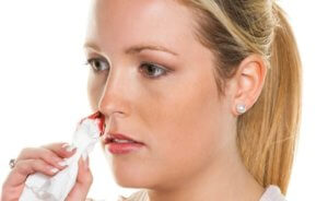 Частое носовое кровотечение может быть признаком серьезной патологии