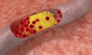 Высокий уровень холестерина может стать причиной инсульта и инфаркта