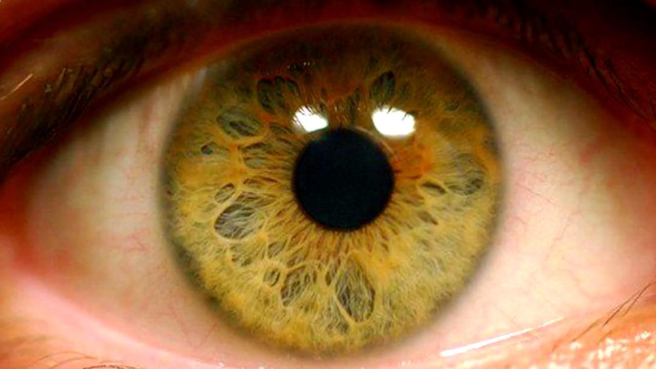 Ангиосклероз сетчатки глаза, что это такое: основные причины заболевания