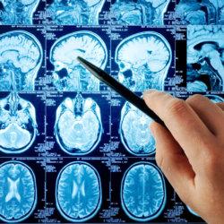 Какие существуют противопоказания к МРТ головного мозга?