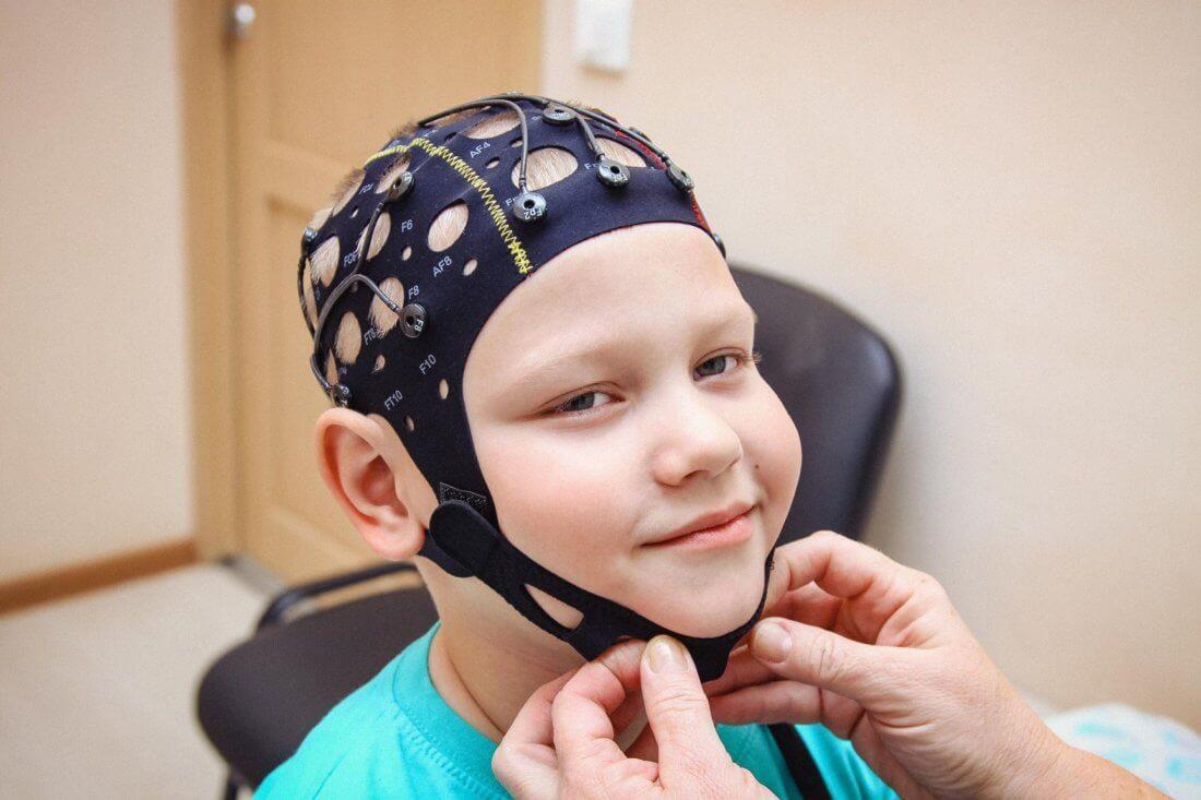 Что показывает ЭЭГ головного мозга у детей?