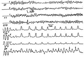 На энцефалограмме можно выделить 4 основных ритма - альфа, бета, тета и дельта