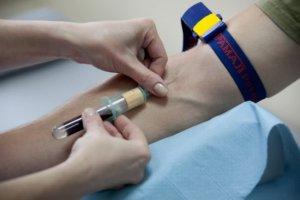 Чтобы узнать уровень показателя кровь нужно сдать на биохимический анализ