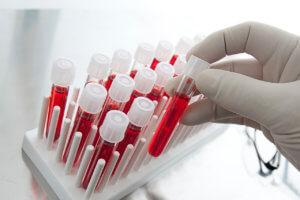 mpv в анализе крови что это такое