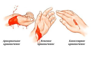 Существует несколько видов наружного кровотечения