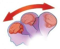Клинические проявления зависят от тяжести сотрясения