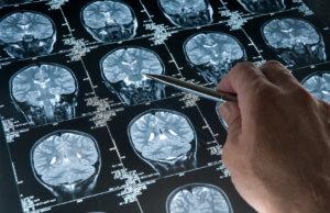 Результаты МРТ головного мозга позволят определить дальнейшее лечение