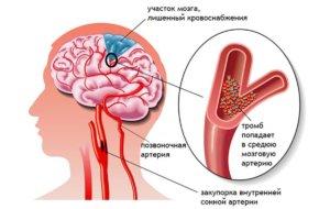 интракраниальные сосуды головного мозга