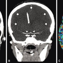 МСКТ ангиография сосудов головного мозга, особенности исследования
