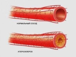 Атеросклероз может стать причиной инфаркта миокарда