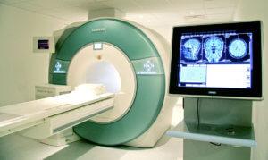 МРТ головного мозга поможет установить причиной боли