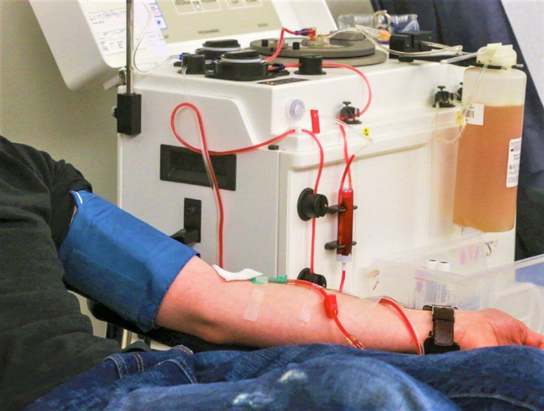 Плазмаферез очищение крови