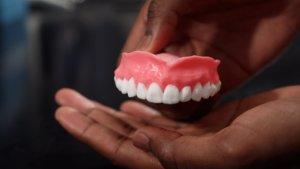 Снятие зубных протезов