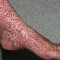 Почему возникает геморрагическая пурпура и чем она опасна?