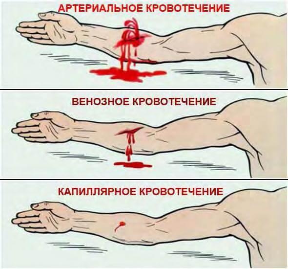 Виды наружных кровотечений