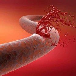 Алгоритм оказания неотложной помощи при кровотечениях в зависимости от их вида