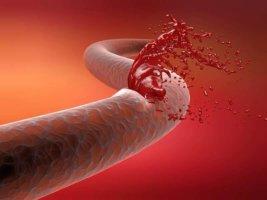 Причины кровотечений