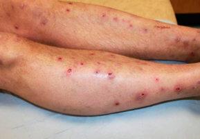 При наличии открытых или инфекционных ран применять лекарство противопоказано