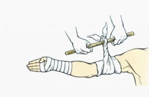 Доврачебная помощь при наружном артериальном кровотечении