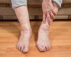 Причины появления судорог ног у пожилых