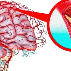 Как почистить сосуды головного мозга народными средствами — самые эффективные рецепты