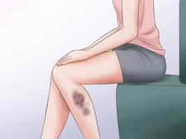 Чем опасны гематомы на ноге?