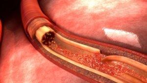 Поражение кровеносного сосуда