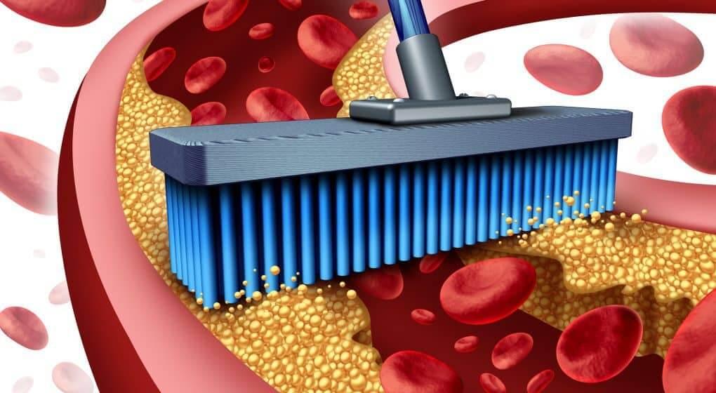 Каким образом и чем почистить сосуды в организме медикаментозно