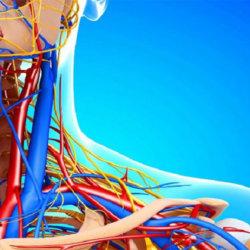 Что такое кинкинг сонной артерии, как его диагностируют и лечат