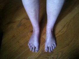 Акроцианоз ног
