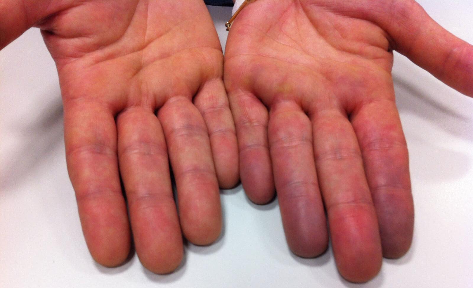 Анроцианоз рук