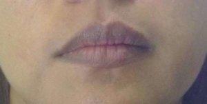 Акроцианоз губ