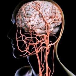 Какими методами и как можно проверить сосуды головного мозга и шеи