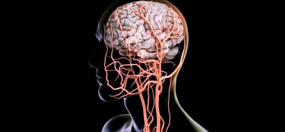 Сосуды мозга и шеи