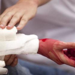 Как остановить артериальное кровотечение и спасти человеку жизнь