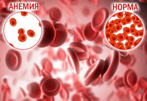 Микроцентарная анемия и норма