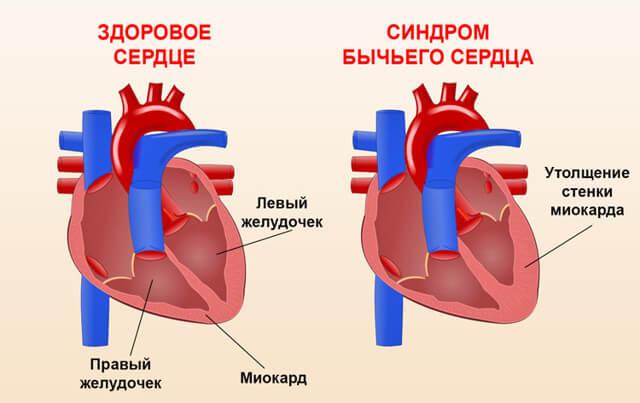 Синдром кардиомегалии