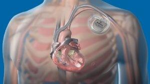 Установка кардиостимулятора бесплатно