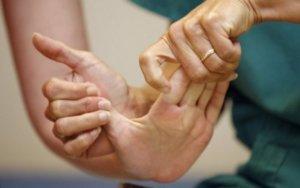 Упражнения для рук после инсульта